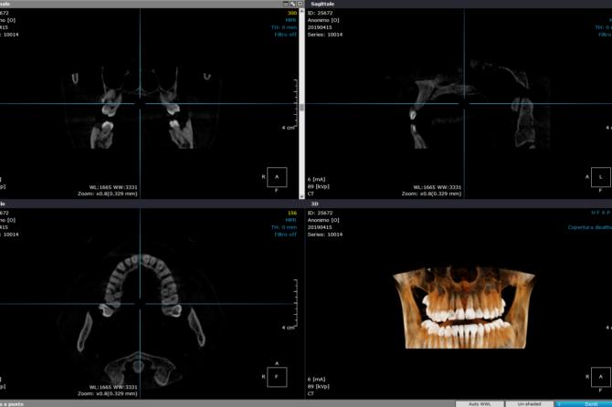 La diagnosi odontoiatrica tramite la TC Cone Beam