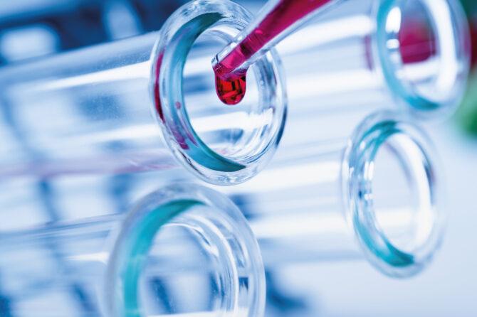 Nuovo laboratorio analisi a Mottola