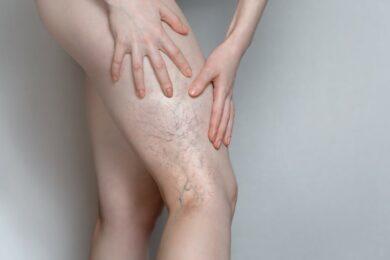 Sclerosanti o scleroterapia: la terapia per ridurre teleangectasie, vene varicose e varici